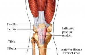 Chronic-Patellar-Tendinopathy1-300x195@2x.jpg